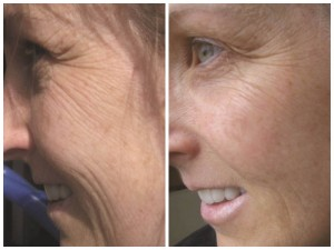 antes e depois creme antirugas