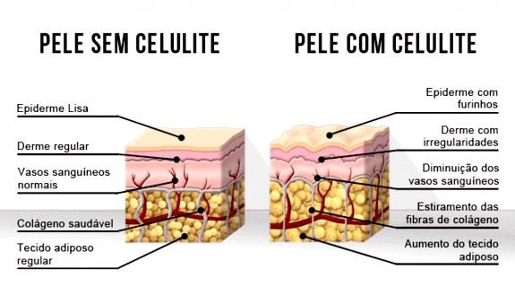 graus da celulite